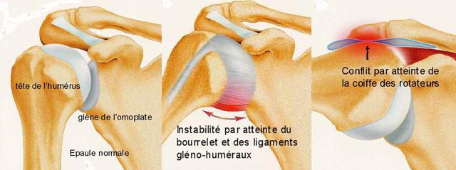 douleur articulaire